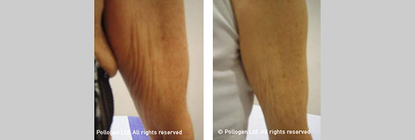 Arm Skin Tightening