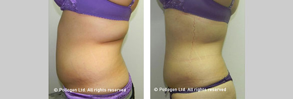 Abdomen Circumference Reduction